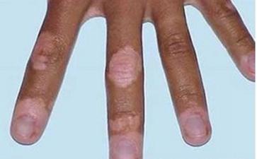 手部白癜风的发病原因